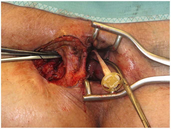 Fistulotomy surgery fistula los angeles