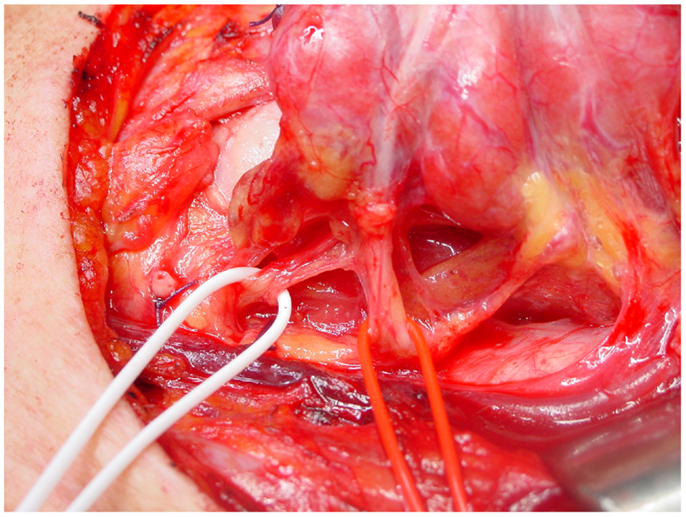 Frontiers Neurological Complications In Thyroid Surgery A