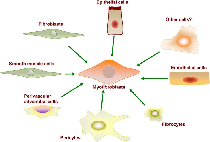 Soma pulmonary fibrosis