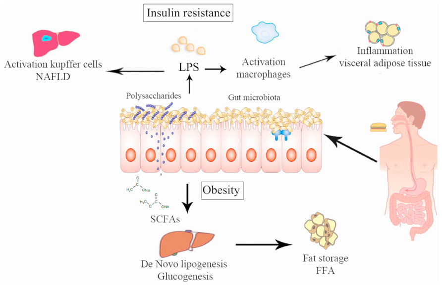 Non-alcoholic fatty liver disease and obesity: the role of the gut bacteria