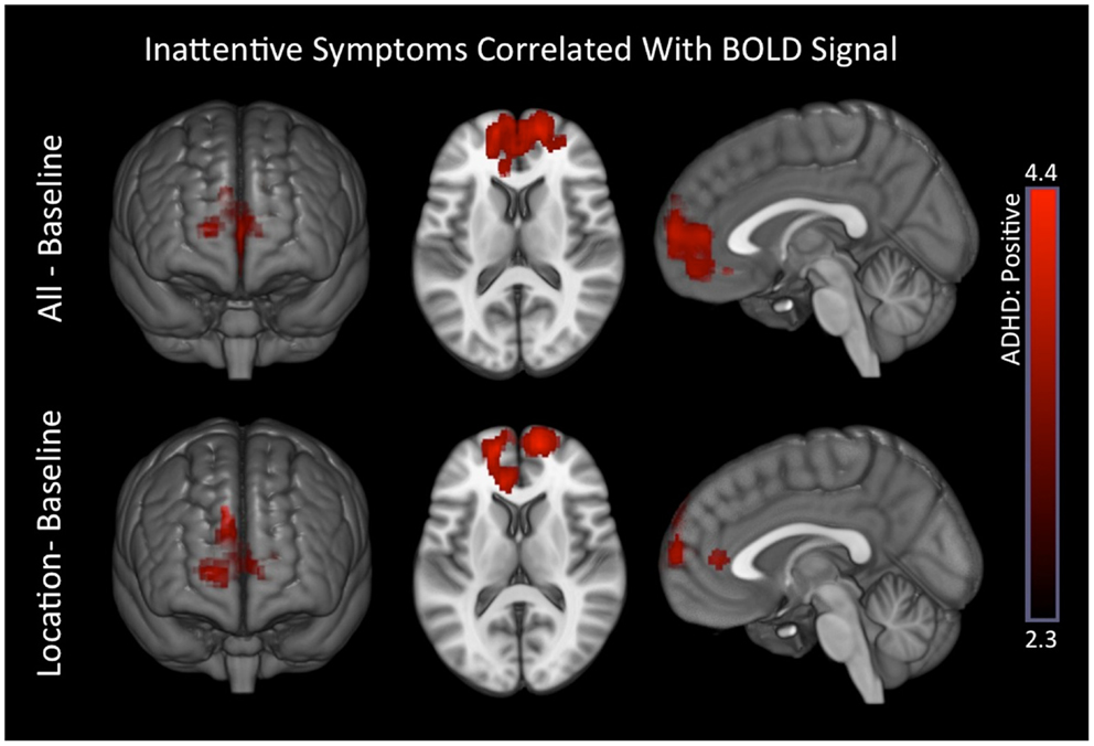 Brain Imaging Reveals Adhd As >> Frontiers Visual Network Asymmetry And Default Mode Network