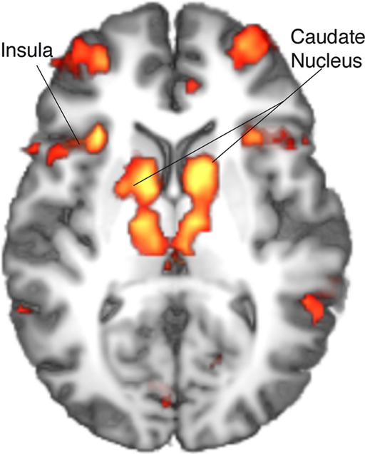 frontiers caudate nucleus signals for breaches of expectation in a