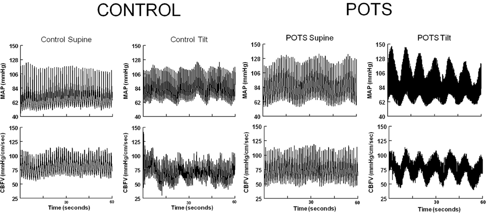 Frontiers Altered Oscillatory Cerebral Blood Flow Velocity