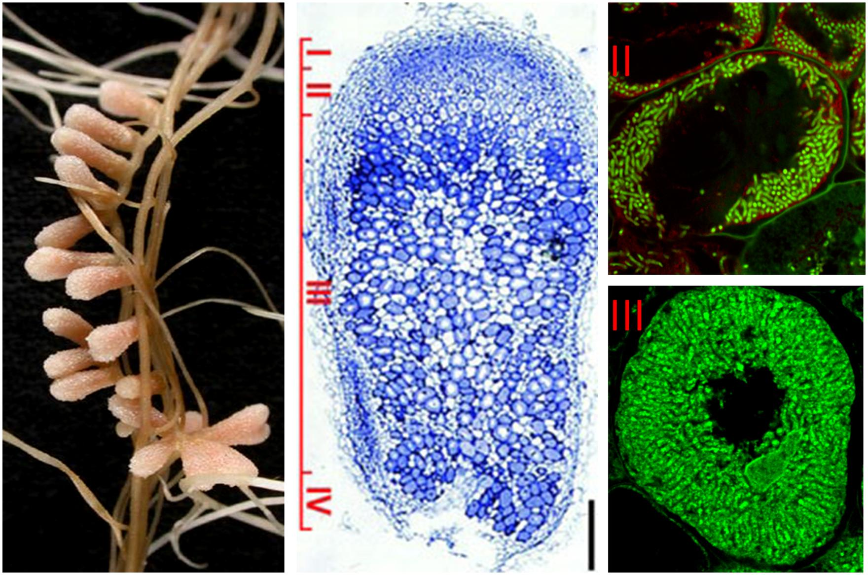 nitrogen fixing symbiotic bacteria Nitrogen fixation: nitrogen fixation  the symbiotic nitrogen-fixing bacteria invade the root hairs of host plants, where they multiply and stimulate the formation.