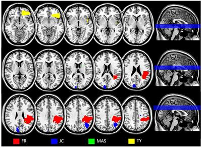Dissociation between Semantic Representations for Motion and Action Verbs: Evidence from Patients with Left Hemisphere Lesions