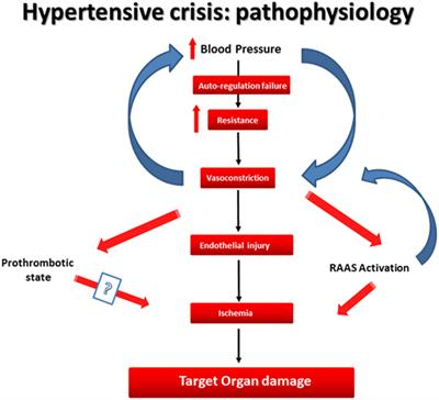 Types Of Email Accounts >> Frontiers | Cardiovascular Hypertensive Crisis: Recent Evidence and Review of the Literature ...