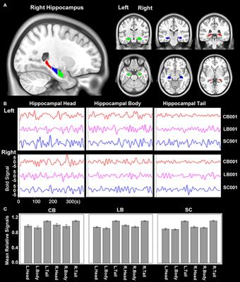 Enhanced Functional Coupling of Hippocampal Sub-regions in Congenitally and Late Blind Subjects