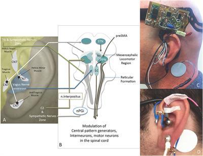 Frontiers   Rapid Alleviation of Parkinson's Disease