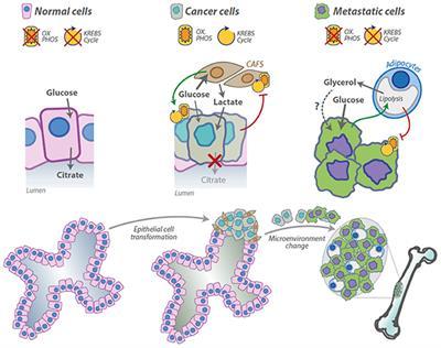 Metastatic cancer glucose. Avantajele endoparaziților față de epoparaziți Metastatic cancer causes