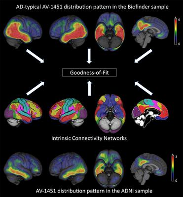 Frontiers | Tau Pathology Distribution in Alzheimer's