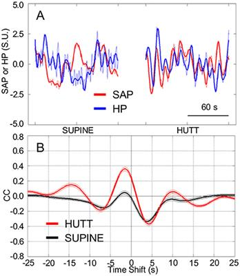 human dive response changes in heart Heart rate change in response to stimulation of the diving response q1a why do human have a diving reflex bin addition to bradycardia (low heart rate) and peripheral vasoconstriction, the human diving response also affects which division of the autonomic nervous system.
