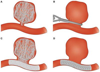 Frontiers | Thrombosis in Cerebral Aneurysms and the