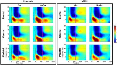 Frontiers | Theta and Alpha Alterations in Amnestic Mild