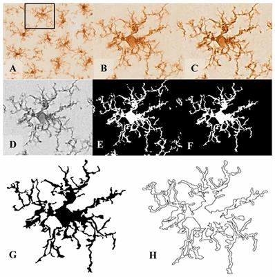 Types Of Email Accounts >> Frontiers | Microglia Morphological Categorization in a ...
