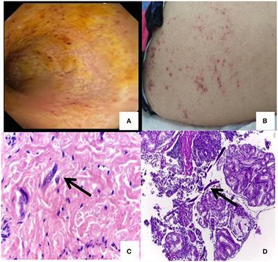 A helminták okozta betegségek, Helminták emberben tünetei. Képek a parazitákról, helmintákról