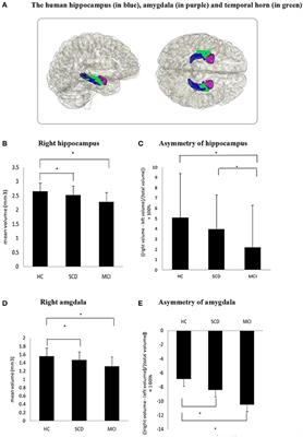 Frontiers | Asymmetry of Hippocampus and Amygdala Defect in