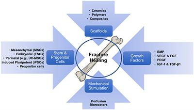 Frontiers Tissue Engineering And Cell Based Therapies For Fractures And Bone Defects Bioengineering And Biotechnology