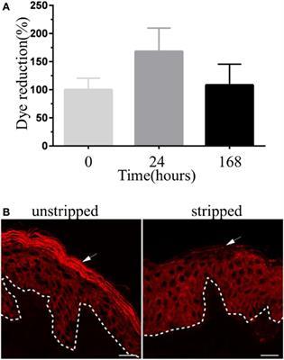toxine panton valentine viermi în umezeală cum să scapi