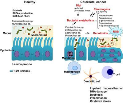 dysbiosis ncbi anthelmintic agents definition