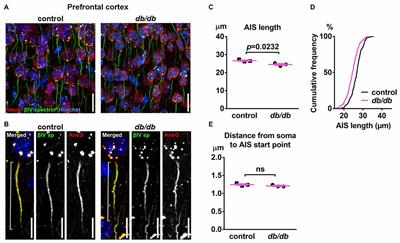 Frontiers | Type 2 Diabetes Leads to Axon Initial Segment Shortening