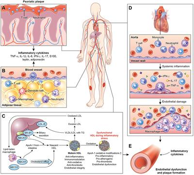 systemic complications of psoriasis