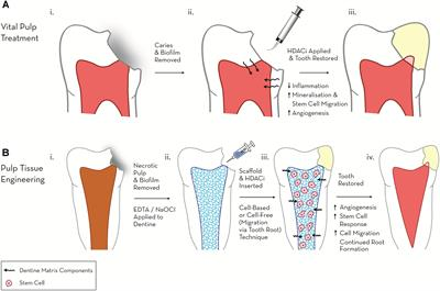 Frontiers | Epigenetic Approaches to the Treatment of Dental