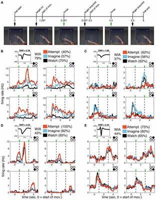 Watch, Imagine, Attempt: Motor Cortex Single-Unit Activity Reveals Context-Dependent Movement Encoding in Humans With Tetraplegia