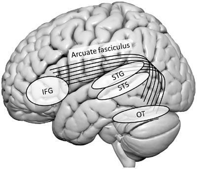 The Functional Neuroanatomy of Letter-Speech Sound Integration and Its Relation to Brain Abnormalities in Developmental Dyslexia