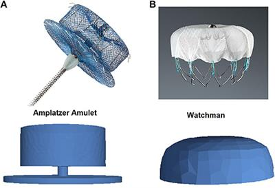 Frontiers   In silico Optimization of Left Atrial Appendage