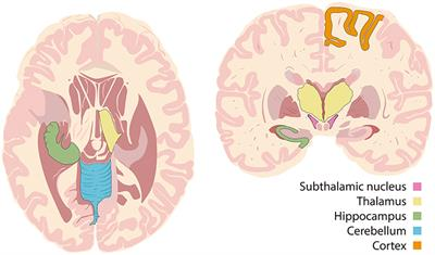 Frontiers | Deep Brain Stimulation and Drug-Resistant