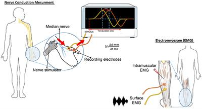 emg 89 81 21 wiring diagram frontiers diagnostic challenge and neuromuscular junction  diagnostic challenge and neuromuscular