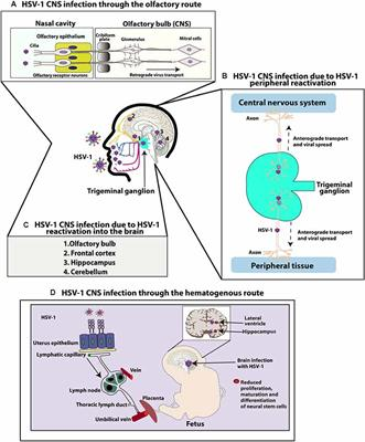 Frontiers Herpes Simplex Virus Type 1 Infection Of The Central Nervous System Insights Into Proposed Interrelationships With Neurodegenerative Disorders Cellular Neuroscience