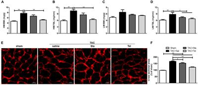 Frontiers | Stachydrine Ameliorates Cardiac Fibrosis Through