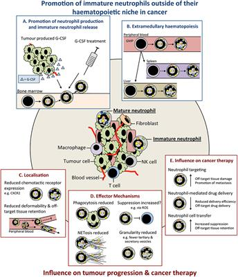 Frontiers | Neutrophil Maturity in Cancer | Immunology