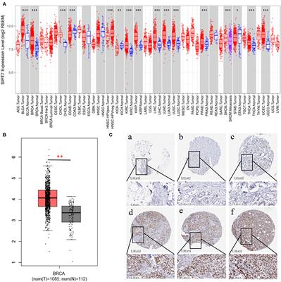 SIRT7 Is a Prognostic Biomarker Associated With Immune Infiltration in Luminal Breast Cancer