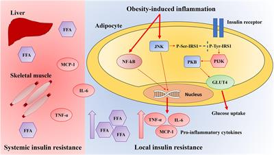 Frontiers Chronic Adipose Tissue Inflammation Linking Obesity To Insulin Resistance And Type 2 Diabetes Physiology