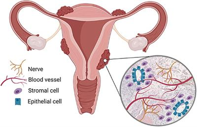 Frontiers Endometriosis Associated Macrophages Origin Phenotype And Function Endocrinology