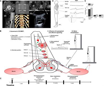 Supraspinal and Afferent Signaling Facilitate Spinal Sensorimotor Network Excitability After Discomplete Spinal Cord Injury: A Case Report