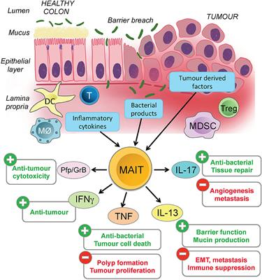 A Role for MAIT Cells in Colorectal Cancer