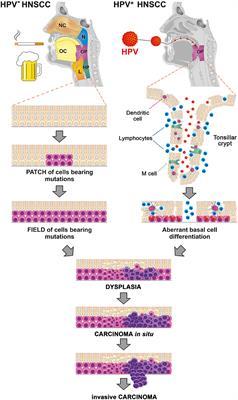 hpv tulehduksen tünet papillomavírus vakcina kor