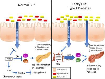 dysbiosis gut
