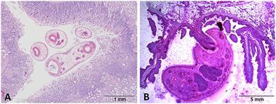 fascioliasis dicroceliosis