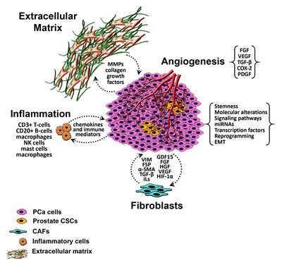 Krónikus prostatitis - Prosztatabetegségek