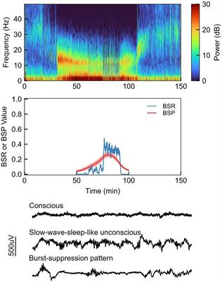Etiology of Burst Suppression EEG Patterns