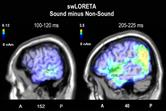 When a photograph can be heard: Vision activates the auditory cortex within 110 ms