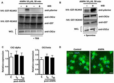 Frontiers | Inhibition of Casein Kinase 2 Protects Oligodendrocytes