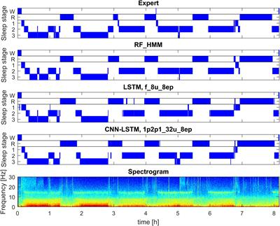 Frontiers | Automatic Human Sleep Stage Scoring Using Deep Neural