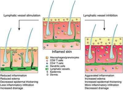 Frontiers | Inflammation and Lymphatic Function | Immunology