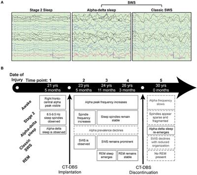 Frontiers | Daytime Central Thalamic Deep Brain Stimulation