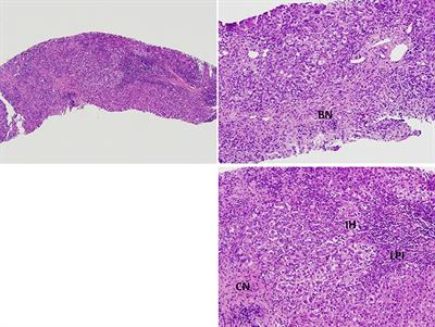Frontiers | Overlap Syndrome Involving Systemic Lupus